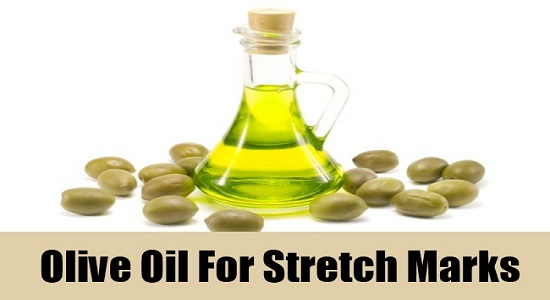 5 easy and natural ways to get rid of stretch marks