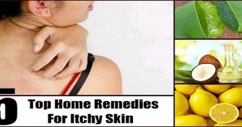 Natural remedies for itchy and irritated skin