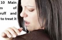 Top 10 Main Causes of Dandruff and Ways to Treat It