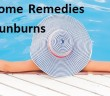 Top 10 Home Remedies to Treat Sunburns