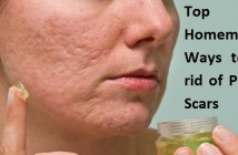 Top 10 Homemade Ways to Get Rid of Pimple Scars
