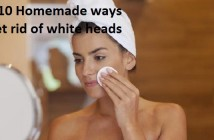 Top 10 Homemade Ways to get rid of White Heads