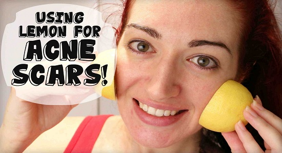 10 Simple remedies to get rid of acne marks at home