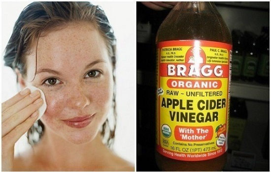 Top 10 Home Based Remedies to Get Rid of Acne